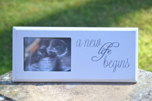 BABY SCAN FRAME2