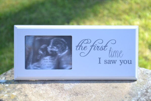 BABY SCAN FRAME3